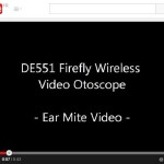 2014-06 youtube ear mite