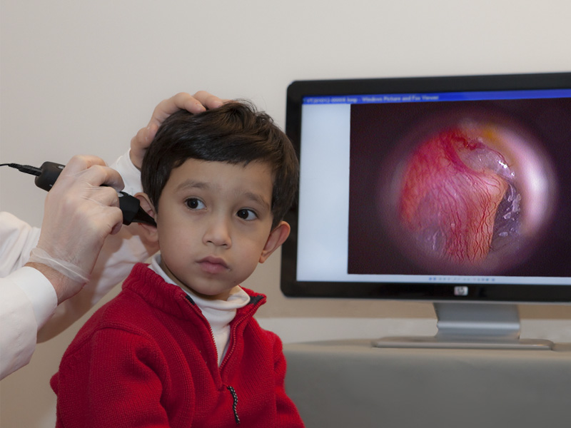 ORL otoscope