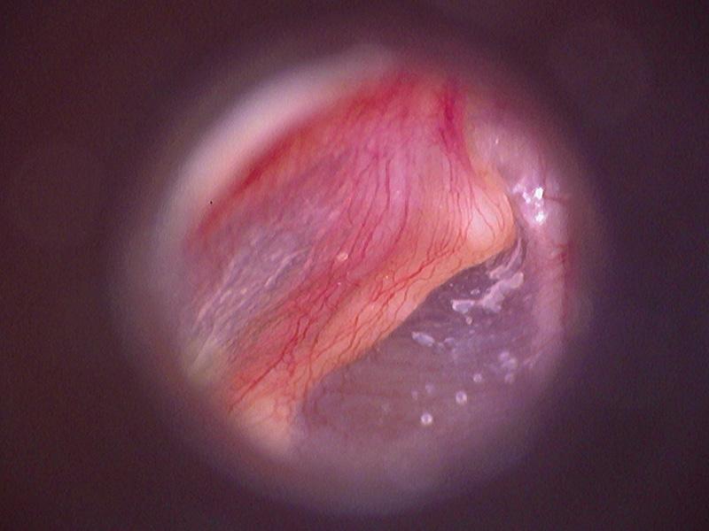 otoscope examen 2