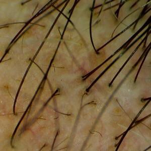 La vidéomicroscopie numérique - Dermatoscope Firefly DE300 - le cuire chevelu 20111203-1611