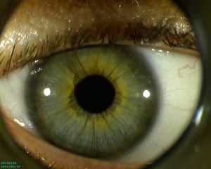 Firefly DE400 eye 1