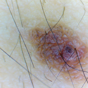 DE330T mole 1 201601-0052