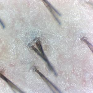 Firefly DE330T Trichologie DE330T_Hair_2