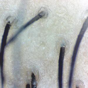 Firefly DE330T Trichologie DE330T_Hair_3