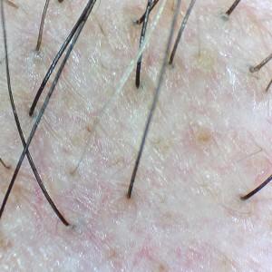 Firefly DE330T Trichologie DE330T_Hair_8