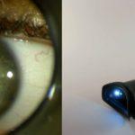 Iridologie – Iridologue – Iriscope - Iridoscope